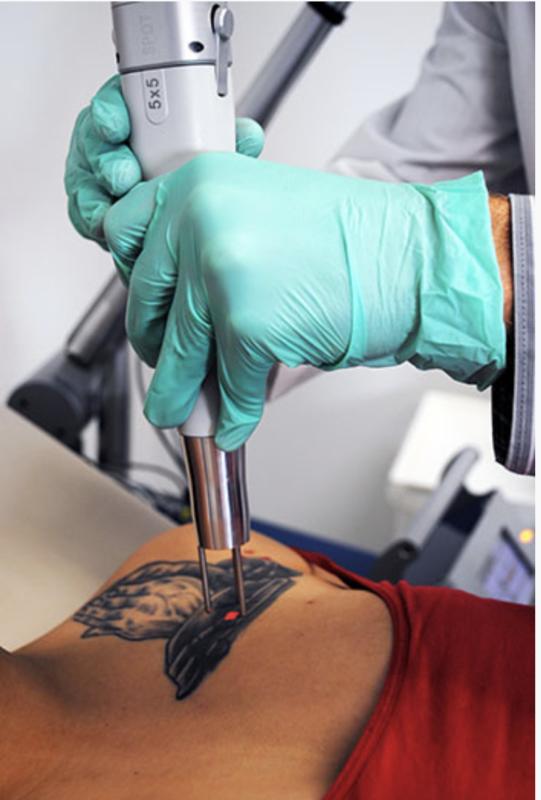 madison laser tattoo removal madison wi