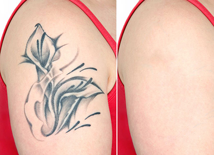 madison laser tattoo removal