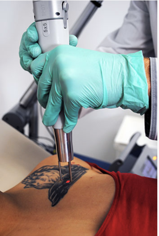 madison laser tattoo removal madison wi